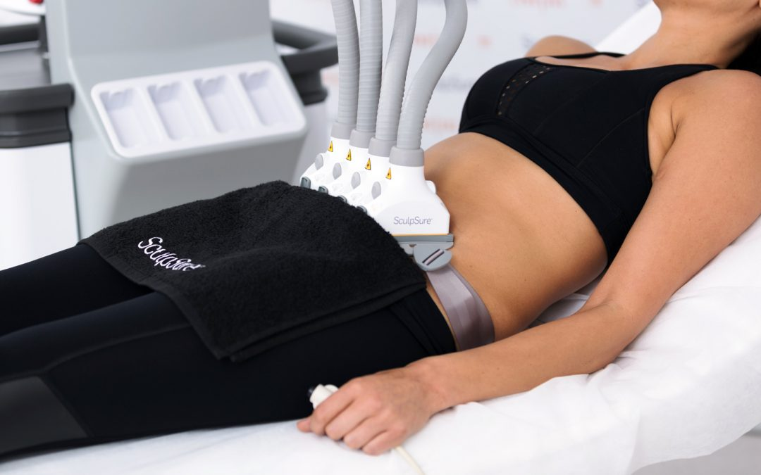 How SculpSure is Taking Over Liposuction as the Most Popular Fat-Removal Procedure